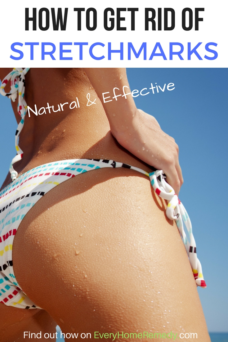 what removes stretch marks completely?