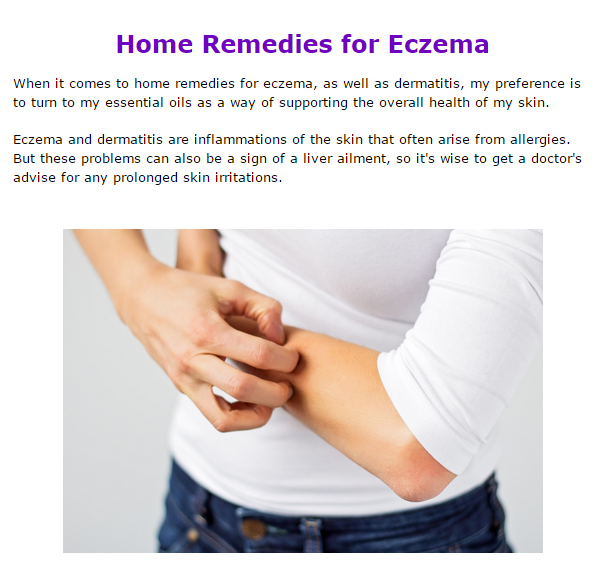 home remedies for eczema with essential oils