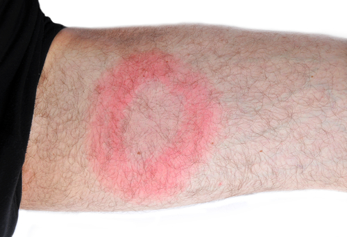 typical lyme rash