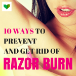 What is razor burn